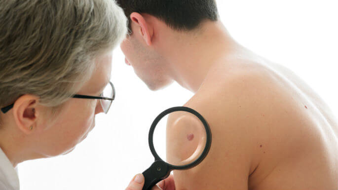The Importance of A Yearly Full Skin Exam