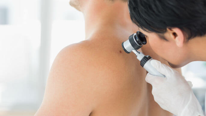 Early Detection Skin Cancer